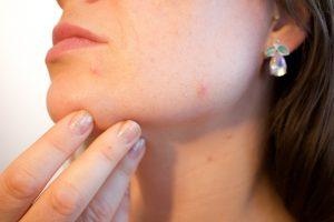 Contre l'acné